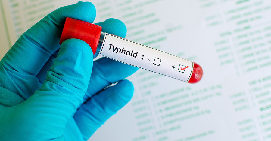 difference typhoid typhus conjugate vaccines