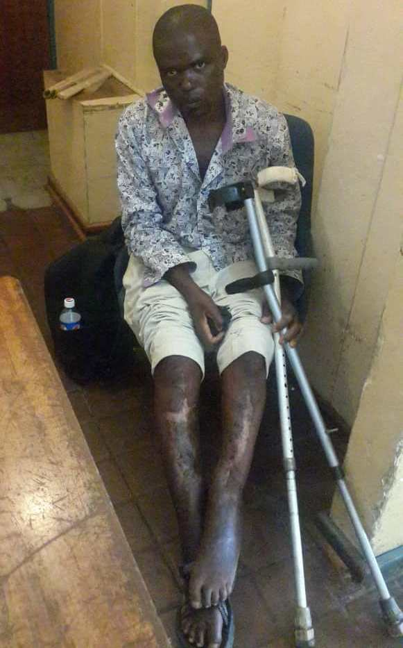 Man Appeals For US$4 000 For Surgery After Hippopotamus